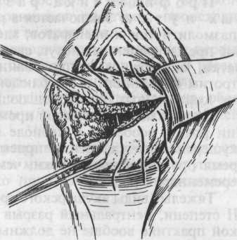 plastika-shva-posle-operatsii-na-vlagalishe